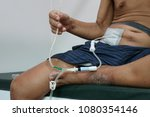 continuous ambulatory... | Shutterstock . vector #1080354146