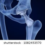 hip replacement implant... | Shutterstock . vector #1082453570