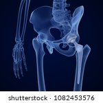 hip replacement implant... | Shutterstock . vector #1082453576