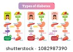 types of diabetes simple... | Shutterstock .eps vector #1082987390