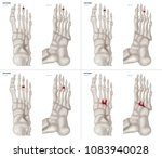 collection arthritis in middle... | Shutterstock . vector #1083940028