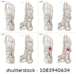 collection arthritis in ring... | Shutterstock . vector #1083940634