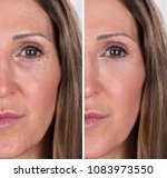 photo of anti aging procedures... | Shutterstock . vector #1083973550