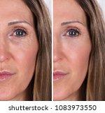 photo of anti aging procedures... | Shutterstock . vector #1083973550