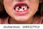 portrait of toothless child... | Shutterstock . vector #1085227913