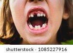 portrait of toothless child... | Shutterstock . vector #1085227916