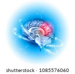 human brain treatment concept... | Shutterstock .eps vector #1085576060