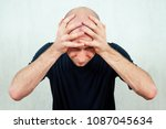 Small photo of a young balding (bald) man yells and screams holding his head. t