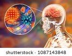 Viral Meningitis And...