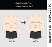 gynecomastia surgery for male... | Shutterstock .eps vector #1089122750