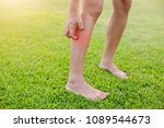 women with his feet  itching on ... | Shutterstock . vector #1089544673