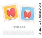 hyperthyroid and healthy glands ... | Shutterstock .eps vector #1090263650