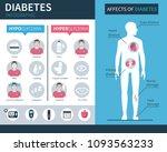diabetes infographic elements... | Shutterstock .eps vector #1093563233