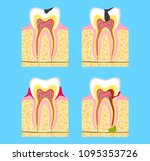 sick teeth   caries ... | Shutterstock . vector #1095353726