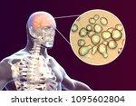 cryptococcal meningitis  3d... | Shutterstock . vector #1095602804
