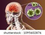 viral meningitis and... | Shutterstock . vector #1095602876