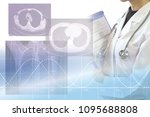 medical concept image x ray   | Shutterstock . vector #1095688808