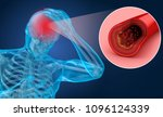 brain stroke   3d illustration... | Shutterstock . vector #1096124339