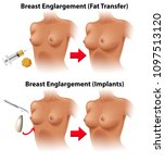 a vector of breast surgery... | Shutterstock .eps vector #1097513120
