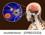 viral meningitis and... | Shutterstock . vector #1098015326