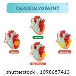 cardiomyopathy   human heart... | Shutterstock .eps vector #1098657413
