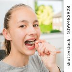teenager with braces on her... | Shutterstock . vector #1099483928