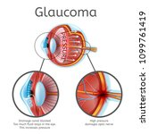 glaucoma vector schema or chart ... | Shutterstock .eps vector #1099761419