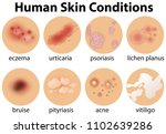 a set of human skin conditions... | Shutterstock .eps vector #1102639286
