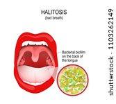 halitosis. bad breath.... | Shutterstock .eps vector #1103262149