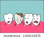 healthy teeth and tooth decay.   Shutterstock .eps vector #1104214370