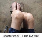 knee of gout patient.old man... | Shutterstock . vector #1105165400