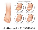 fungal nail infection.... | Shutterstock .eps vector #1105184636