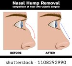 vector of nose reconstruction... | Shutterstock .eps vector #1108292990