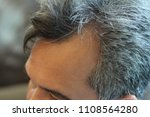 pictures of scalp conditions... | Shutterstock . vector #1108564280