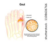 gout is a form of inflammatory... | Shutterstock .eps vector #1108636766