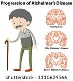 progression of alzheimer's... | Shutterstock .eps vector #1110624566