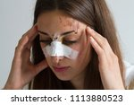 girl victim of accident or... | Shutterstock . vector #1113880523