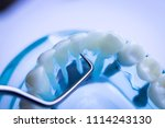 dentist cleaning teeth with... | Shutterstock . vector #1114243130