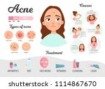 infographics of acne. causes... | Shutterstock .eps vector #1114867670