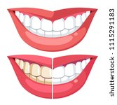 teeth whitening  mouth cosmetic ... | Shutterstock .eps vector #1115291183
