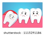 impacted wisdom tooth character ... | Shutterstock .eps vector #1115291186