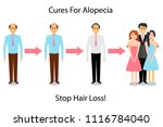 a man is treated for alopecia.... | Shutterstock .eps vector #1116784040