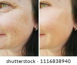 face woman wrinkles | Shutterstock . vector #1116838940