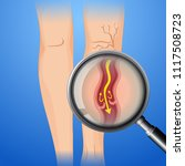 deep vein thrombosis on leg... | Shutterstock .eps vector #1117508723
