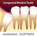 a compacted wisdom tooth... | Shutterstock .eps vector #1119778553