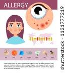 allergy infographics.... | Shutterstock .eps vector #1121777219