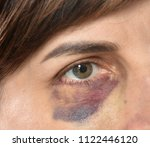 close up of woman with bruise... | Shutterstock . vector #1122446120