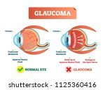 glaucoma illness vector... | Shutterstock .eps vector #1125360416