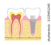 human teeth and dental implant. ... | Shutterstock . vector #1125401240