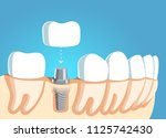 jaw part model with teeth row... | Shutterstock .eps vector #1125742430